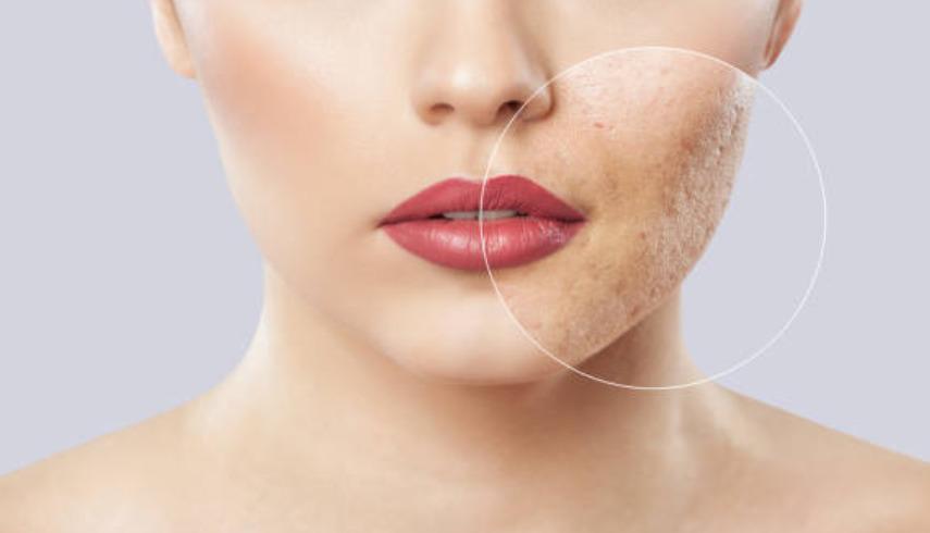 Cómo cambia el color de la piel humana